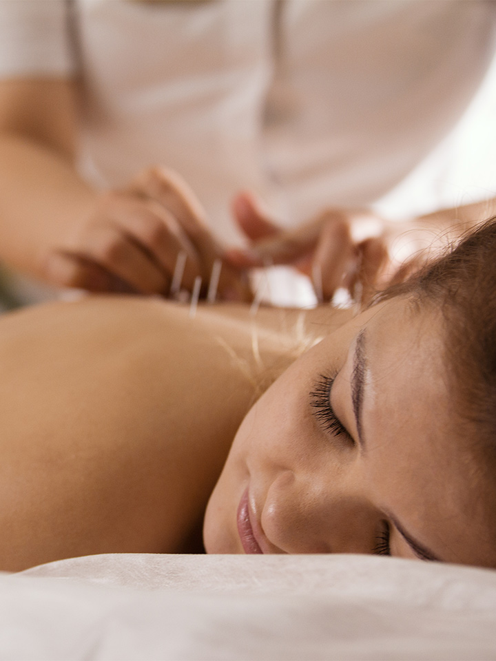 a woman enjoying an acupuncture spa session.
